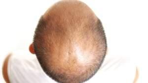 enzyme-baldness-2