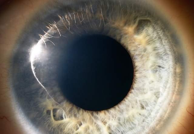 54d113a31254e_-_infrared-eye-de