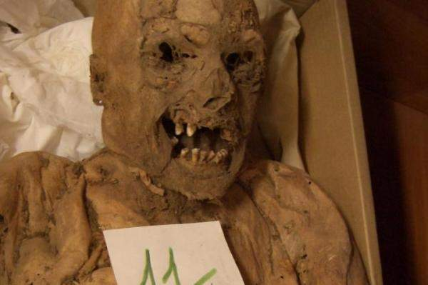 Colon-cancer-gene-mutation-found-in-18th-century-mummy