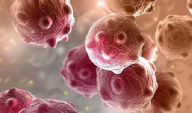 orange-cancer-cells_1024