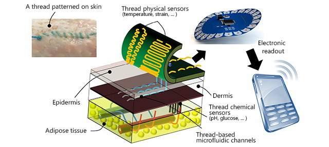 smart-suture
