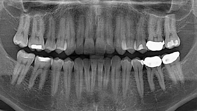 teethxray2