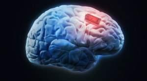 Чипирование мозга