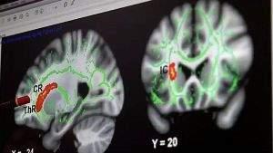 Исследование: мозг педофилов, совершивших реальное насилие над ребёнком, отличается от мозга людей с педофильными наклонностями