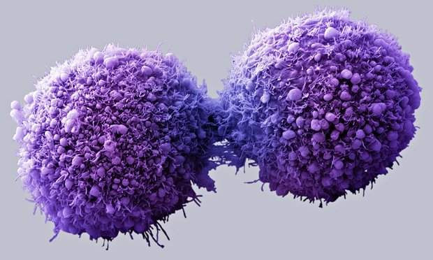 pancreatic-cancer-cells-012