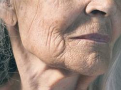 disease-of-aging
