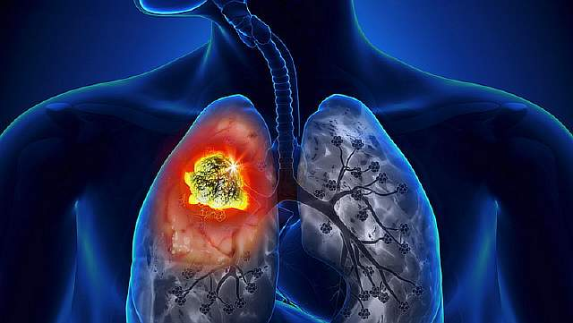 dt_150527_lung_cancer_800x600