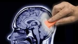 Мозг может восстанавливать некоторые воспоминания