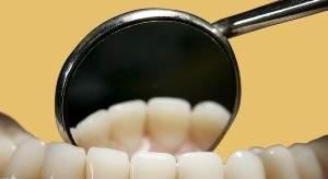 Благодаря препарату для лечения болезни Альцгеймера может полностью отпасть необходимость в пломбировании больных зубов