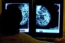 106938503_breast_cancer-large_trans_NvBQzQNjv4BqszlzJBngkaiUL9Lilc8yO6vC9_n_grwHNX0jG_bnyZE