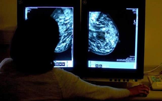 JS120645055_PA_Breast-cancer-prevention-large_trans_NvBQzQNjv4BqszlzJBngkaiUL9Lilc8yO6vC9_n_grwHNX0jG_bnyZE