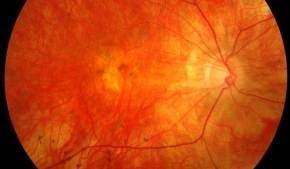 Новый тест на глаукому позволяет начать лечение до появления первых симптомов потери зрения