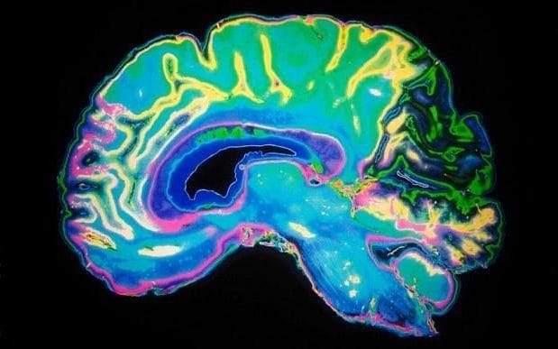 brain_PA-large_trans_NvBQzQNjv4BqqVzuuqp