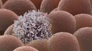 Минздрав США одобрил «персонализированный» противораковый препарат