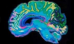 ИИ от IBM может предсказать шизофрению, просто изучив кровоток в мозге