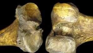 Старение и вес не могут объяснить резкий рост заболеваемости артритом коленного сустава