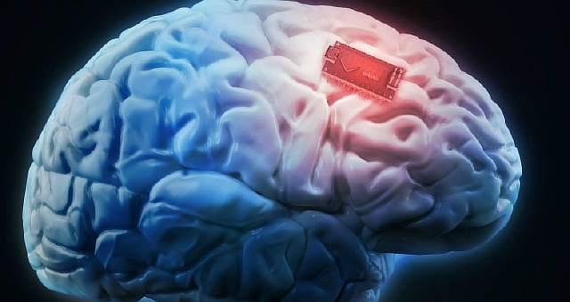 Ученые впервый раз вживили человеческий мозг имплант, улучшающий память