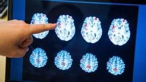 Развитие слабоумия связано с токсическим отравлением мозга мочевиной