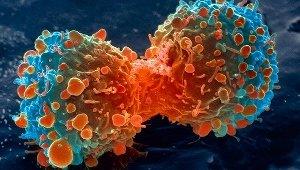 Раскрыт внутриклеточный молекулярный тормоз, предотвращающий развитие рака