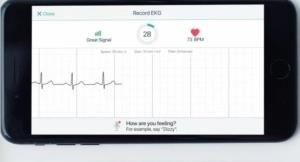 Приложение для смартфона эффективно распознаёт потенциально смертельные сердечные приступы с точностью электрокардиограммы