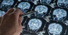 Исследование: физические упражнения могут предотвратить болезнь Альцгеймера