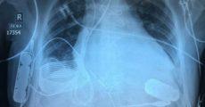 Бионическое сердце в груди пациента работает с беспроводной подзарядкой